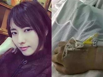 9 ngày kinh hoàng sau xuất huyết não của cô gái trẻ khiến nhiều người phải bỏ thói quen này