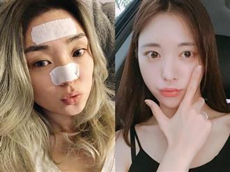 Ai ai cũng dùng miếng dán lột mụn, nhìn thì đã mắt nhưng liệu có tốt cho da?