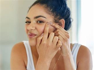 Bác sĩ da liễu tại Anh hé lộ nguyên nhân khiến làn da của chúng ta xuất hiện nếp nhăn trước tuổi lão hóa