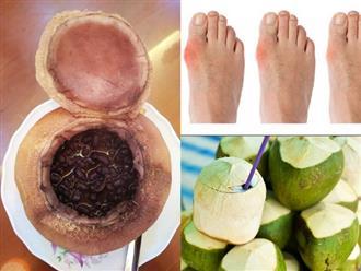 Bài thuốc trị bệnh gút cực đơn giản từ dừa non, nhiều người đã áp dụng và thành công