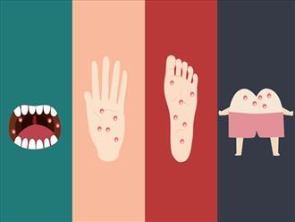 Bệnh tay chân miệng đang vào mùa dịch và dưới đây là những điều mà cả người lớn lẫn trẻ nhỏ đều phải biết