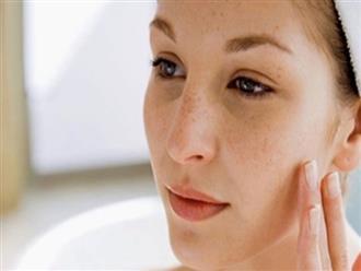 Bí quyết trị nám da bằng các nguyên liệu tự nhiên rẻ tiền mà không phải ai cũng biết