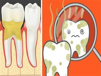 Cẩn thận mắc bệnh viêm nướu răng nếu gặp phải 5 dấu hiệu sau