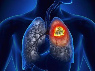 Cẩn thận với những căn bệnh không có triệu chứng rõ ràng, đến khi phát hiện thì rất khó điều trị