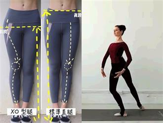 Chỉnh chân từ cong thành thẳng không khó, chỉ cần bạn chăm tập theo 3 động tác dưới đây
