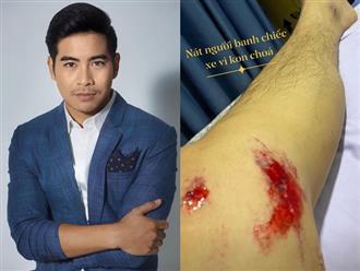 Chồng cũ Ngọc Lan - diễn viên Thanh Bình khiến fan lo lắng khi bị tai nạn giao thông: 'Nát người banh chiếc xe'