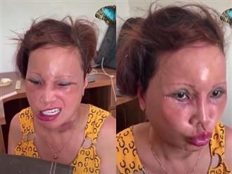 """""""Cô dâu 63 tuổi"""" ở Cao Bằng lại tiếp tục lộ diện khuôn mặt biến dạng, sưng phù không thể nhận ra"""