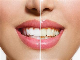 Đánh răng mỗi ngày nhưng răng ngày càng vàng ố xỉn màu có thể do 5 sai lầm ai cũng dễ mắc phải sau