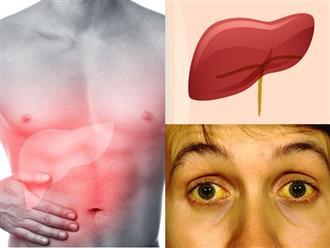 Dấu hiệu cảnh báo gan đang chứa đầy độc tố, nhiễm độc: Số 2 và 4 nhiều người gặp