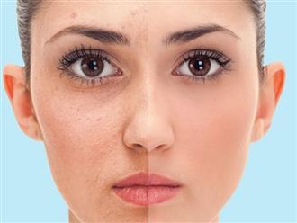 Điều gì xảy ra với làn da khi tắm nước lạnh thường xuyên?