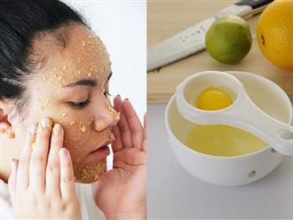 """Đừng nên sử dụng """"lột mặt"""" hóa chất, hãy tự làm mặt nạ trị mụn cám này vừa an toàn lại tiết kiệm"""
