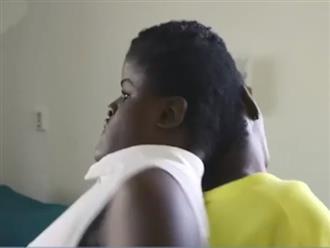 Bác sĩ nói không sống quá 10 năm, cặp song sinh dính liền đầu khiến nhiều người ngỡ ngàng vì kỳ tích đã xảy ra