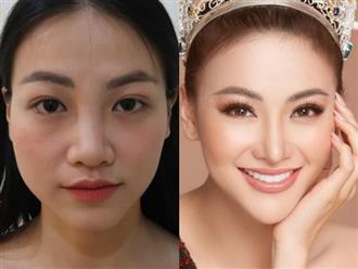 Giữa ồn ào bị tố nợ tiền tỷ, Hoa hậu Trái đất Phương Khánh lộ thông tin từng phẫu thuật thẩm mỹ
