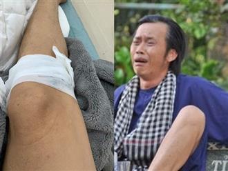 Hoài Linh khiến dân mạng lo lắng khi đăng ảnh bị thương nằm băng bó, tiết lộ luôn đối tượng 'gây án'