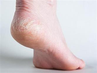 Lạnh đỉnh điểm trong mùa Đông, nhiều người hoang mang trước thông tin nứt nẻ gót chân gây ung thư