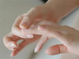 Móng tay có những biểu hiện này rất dễ kéo theo nhiều vấn đề sức khỏe nguy hại mà bạn không nên coi thường