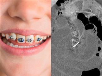 Người phụ nữ phải đi cấp cứu do mảnh niềng răng kẹt trong bụng suốt 10 năm
