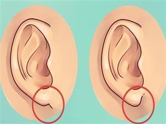Nhìn tai bắt bệnh: Những dấu hiệu nguy hiểm bạn không ngờ