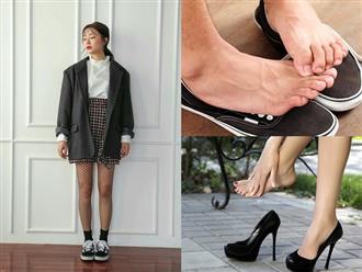 Những sai lầm khi đi giày trong mùa hè tuyệt đối đừng phạm phải kẻo gây hại sức khỏe