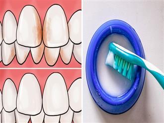 Răng trắng như bọc sứ nhờ những cách loại bỏ vết ố vàng cực nhanh từ nguyên liệu thiên nhiên