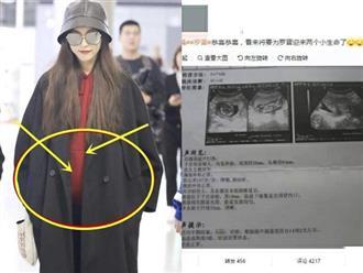 Rò rỉ hình ảnh siêu âm song thai của Đường Yên, vợ chồng La Tấn chuẩn bị đón 2 thành viên mới?