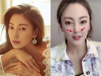 'Song Hye Kyo Trung Quốc' - Trương Vũ Kỳ lộ biến chứng phẫu thuật thẩm mỹ khiến nhiều người 'phát hoảng'