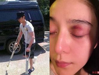 Tai nạn nguy hiểm trên phim trường của sao Hoa Ngữ: Phạm Băng Băng suýt mù mắt, Phùng Thiệu Phong bị ngựa hất văng