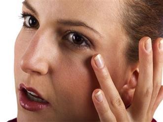 Tại sao ngủ đủ, mắt vẫn thâm quầng?