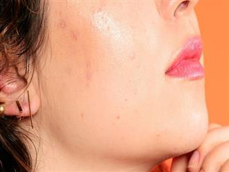 Tại sao phải chăm sóc hàng rào bảo vệ tự nhiên của da và đây là những việc bạn cần làm
