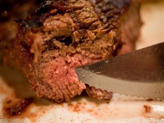 Thải ra sán dài 5 mét chỉ vì thường xuyên thích ăn kiểu thịt mà nhiều người cũng mê