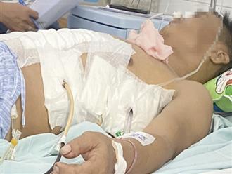 TP.HCM: Người đàn ông bị đâm sát tim, thấu ngực nguy kịch được cứu sống ngoạn mục nhờ báo động đỏ