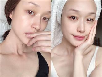 Trọn bộ 10 bí kíp skincare tâm đắc nhất của các bác sĩ, toàn tips đơn giản nhưng giúp da đẹp lên trông thấy