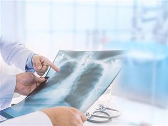 Tưởng bị viêm phổi ai dè bị ung thư phổi, người phụ nữ hối hận vì bỏ qua dấu hiệu quan trọng này