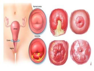 19, 20 tuổi ung thư cổ tử cung: Bác sĩ chỉ ra nguyên nhân nhiều bạn trẻ sẽ giật mình