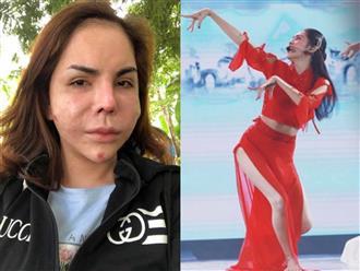 Hotgirl chuyển giới từng 'nạo mặt' vì biến chứng thẩm mỹ sẵn sàng tẩy chay thần tượng nếu sai về đạo đức chứ không bênh vực mù quáng
