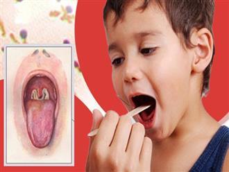Ai dễ có nguy cơ mắc bệnh bạch hầu?