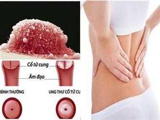 Cả nhà sốc vì nữ sinh 17 tuổi đã ung thư cổ tử cung: BS mách 1 việc cần làm để phòng bệnh hiệu quả