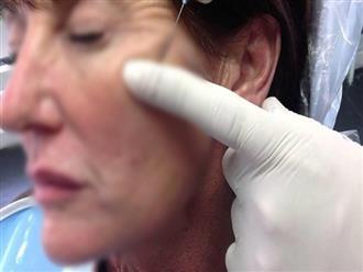 """Cấy chỉ căng da mặt, người phụ nữ phải """"lột toàn bộ da mặt vùng cấy chỉ"""" để chữa trị"""