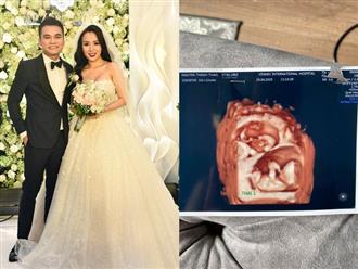Chia vui cùng Đông Nhi, Khắc Việt bất ngờ khoe vợ đang mang song thai, 1 trai 1 gái