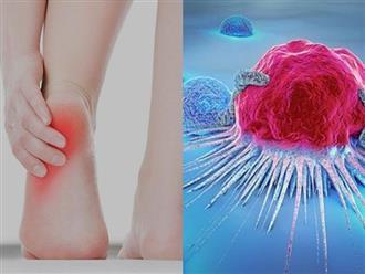 Đi khám vì bị đau gót chân, không ngờ phát hiện khối u máu: Bác sĩ cảnh báo 4 bệnh khác liên quan đến đau gót chân