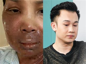 Tâm sự xúc động em trai Hoài Linh gửi Hồng Ngọc khi chứng kiến ảnh 2/3 gương mặt bỏng nặng của đàn chị