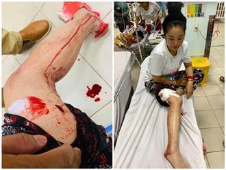 'Lạnh gáy' với hình ảnh Thúy Nga gặp tai nạn, máu me bê bết trong bệnh viện