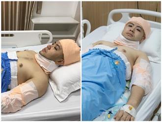Sau khi bị chê mập ú, lộ ảnh Akira Phan băng bó từ đầu đến chân, nghi phẫu thuật thẩm mỹ