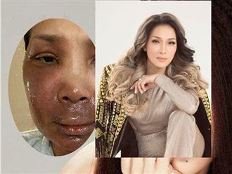 Sau tai nạn bỏng 2/3 gương mặt, Hồng Ngọc chính thức 'trở lại và lợi hại hơn xưa', nhan sắc khó nhận ra