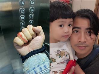 Sau 1 tháng ly hôn Ngọc Lan, Thanh Bình gây lo lắng với bàn tay rướm máu lúc đêm khuya