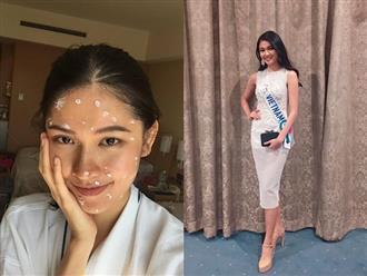 Á hậu Thùy Dung dính bệnh thủy đậu ngay trước thềm chung kết Hoa hậu Quốc tế 2017: Nhan sắc xuống dốc nghiêm trọng