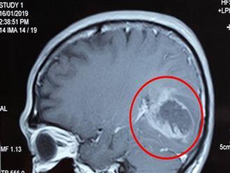 Trẻ hay nôn, đặc biệt nôn vào buổi sáng: Cha mẹ cần đưa tới viện kiểm tra u não ngay!