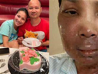 Vợ bị bỏng khắp mặt, chồng Hồng Ngọc có hành động xoa dịu nỗi đau khiến mọi người xúc động