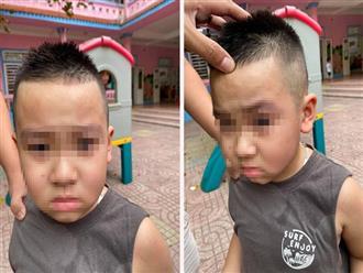 Vụ việc gây bức xúc: Con đi học mẫu giáo bị bạn cấu xước mí mắt, phụ huynh đến tận trường tát thẳng mặt trẻ trước mặt cô giáo