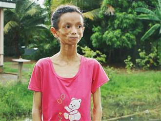 Xót cảnh thiếu nữ 16 tuổi chỉ còn da bọc xương, 3 năm trời phải tháo khớp tay chân để giành sự sống từ căn bệnh quái ác